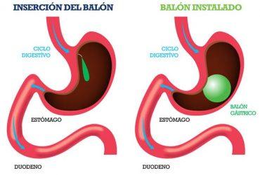 El balón gástrico y su uso en los adolescentes